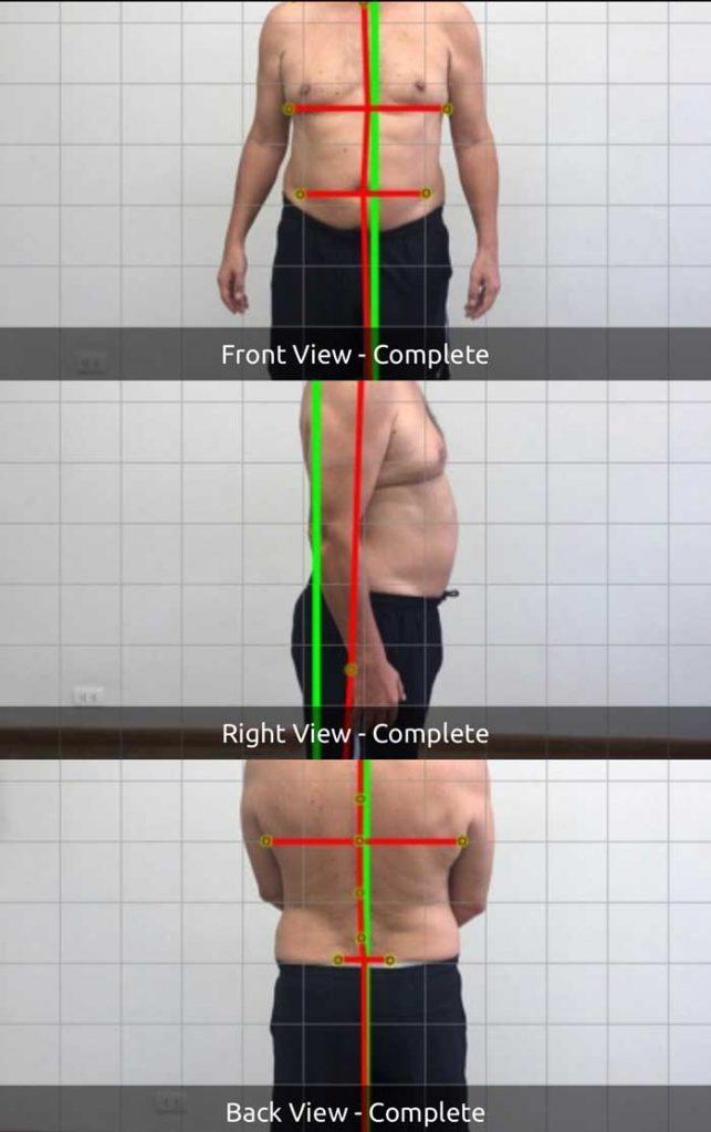 Posture Right